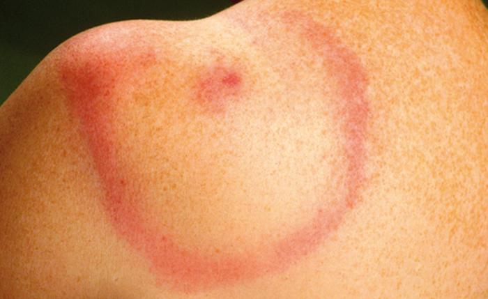 Een duidelijke rode kring of vlek (erythema migrant) is het bewijs voor een Lyme besmetting.